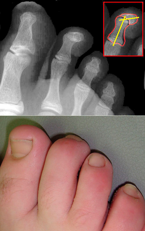 photo of hammer toe and an x-ray showing hammer toe