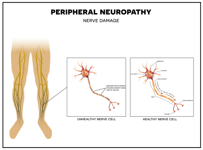 medical diagram showing peripheral neuropathy   American Foot & Leg Specialists